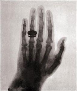 a prima radiografia a raggi X (1896) la mano è della moglie di Röntgen